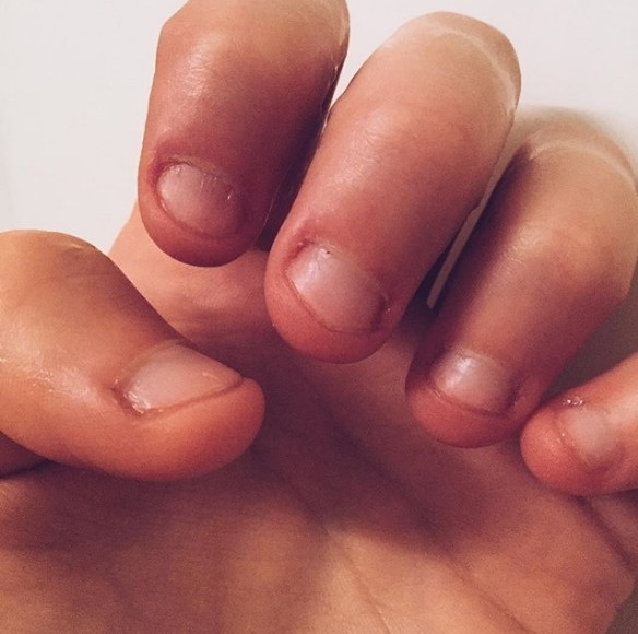 Why You Should Stop Biting Your Nails Right Now - Victoria\'s Glamour